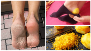 lemon-peel-for-feet