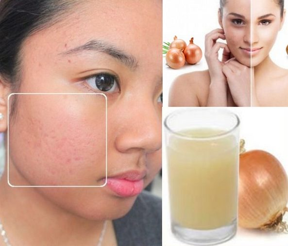 Onion Juice for Dark Spots and Acne Scars