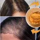 Now-Grow-Your-Hair-At-Home-And-Leave-All-Doctors-With-Open-Mouth
