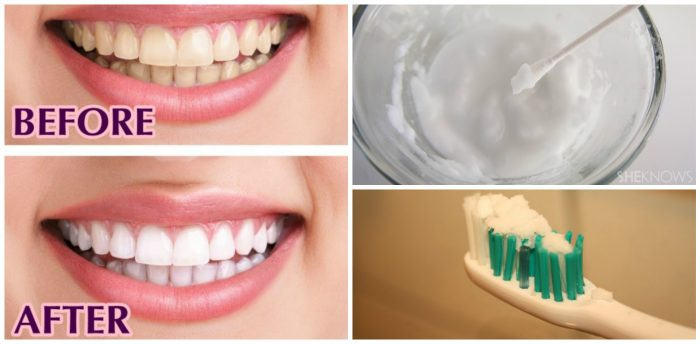 This-Is-How-You-Can-Get-Sparkling-White-Teeth-In-Just-Two-Minutes