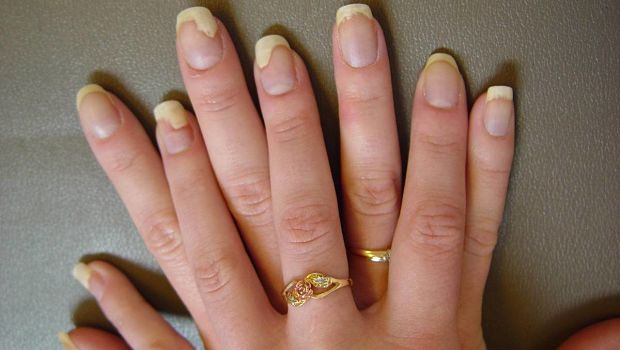 nail-fungus-from-constant-manicure