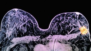 _88679262_c0269993-breast_cancer,_mri_scan-spl