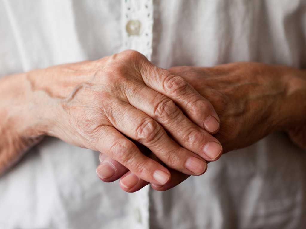 Ginger-for-Arthritis