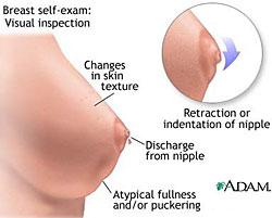 breast_4