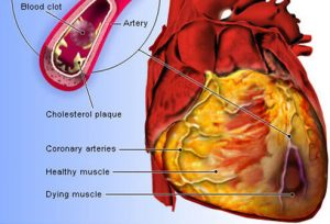 heart_disease_s3_heart_attack