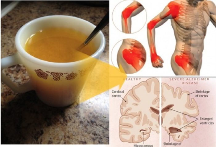 10-Reasons-Everyone-Should-Drink-Warm-Turmeric-Water-Every-Morning-700x477