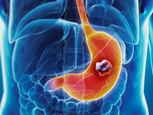 dt_140820_gastric_stomach_cancer_800x600