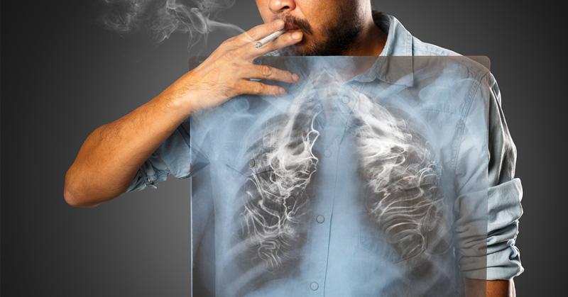ဆေးလိပ်ဖြတ်ဖို့ခက်နေသူတွေအတွက် အဆုတ်ဆေးနိုင်တဲ့ သဘာဝနည်း