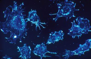 Cancer_cells_1-e1452192675380
