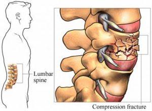 the-vertebral-osteoporosis1