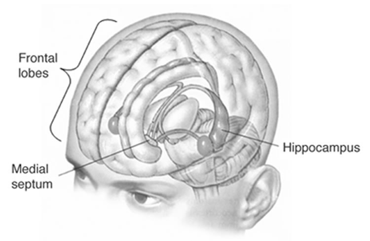 hippocampud-smaller-depression-public