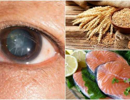 မ်က္စိအတြင္းတိမ္ျဖစ္ျခင္းကို ကာကြယ္ေလွ်ာ့ခ်ေပးမယ့္ အစားအစာ (၆) မ်ိဳး