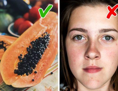 ဝက်ခြံနဲ့ အမဲစက်များကို သက်သာပျောက်ကင်းစေမယ့် အစားအစာ (၆) မျိုး