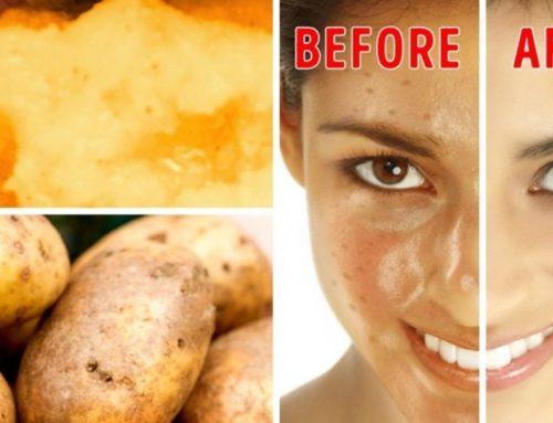 သဘာဝ အလှကုန်ပစ္စည်းအဖြစ် အသုံးပြုနိုင်တဲ့ မီးဖိုချောင်ရှိ အစားအစာ (၃) မျိုး
